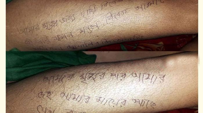 দুই-পায়ে-মৃত্যুর-কারণ-ও-দায়ীদের-নাম-লিখে-গেলেন-টুম্পা